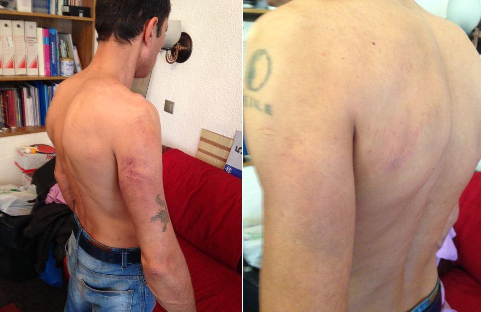 Rănile lui GD, provocate în arestul Secției 17. Sursa foto: Asociația CARUSEL