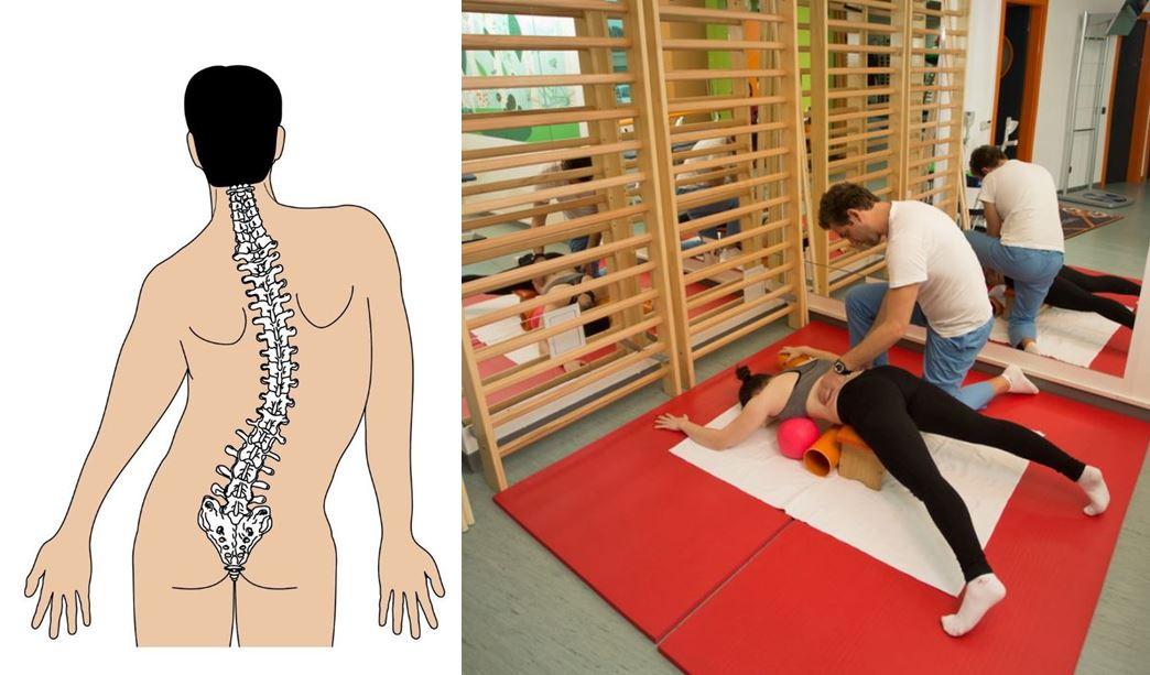 Așa arată coloana vertebrală a unui pacient cu scolioză