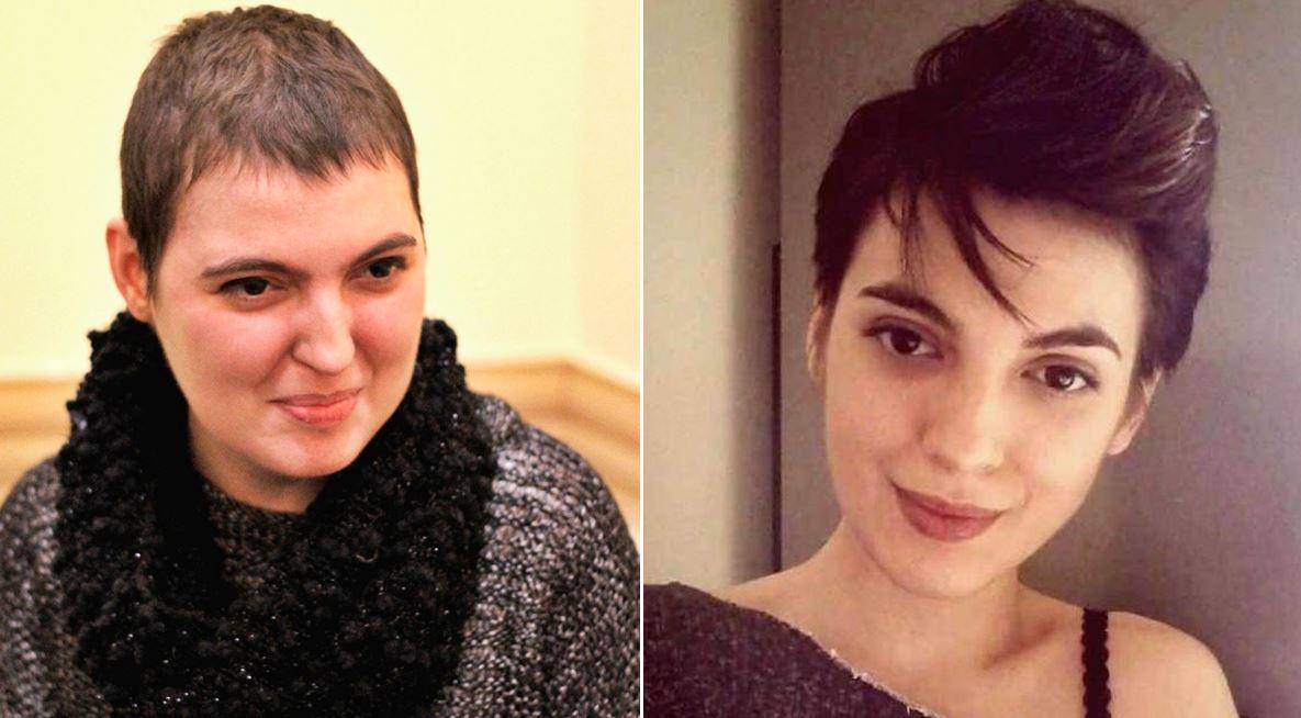 Andra Țoe acum (stânga) și înainte de diagnosticul medical (dreapta)