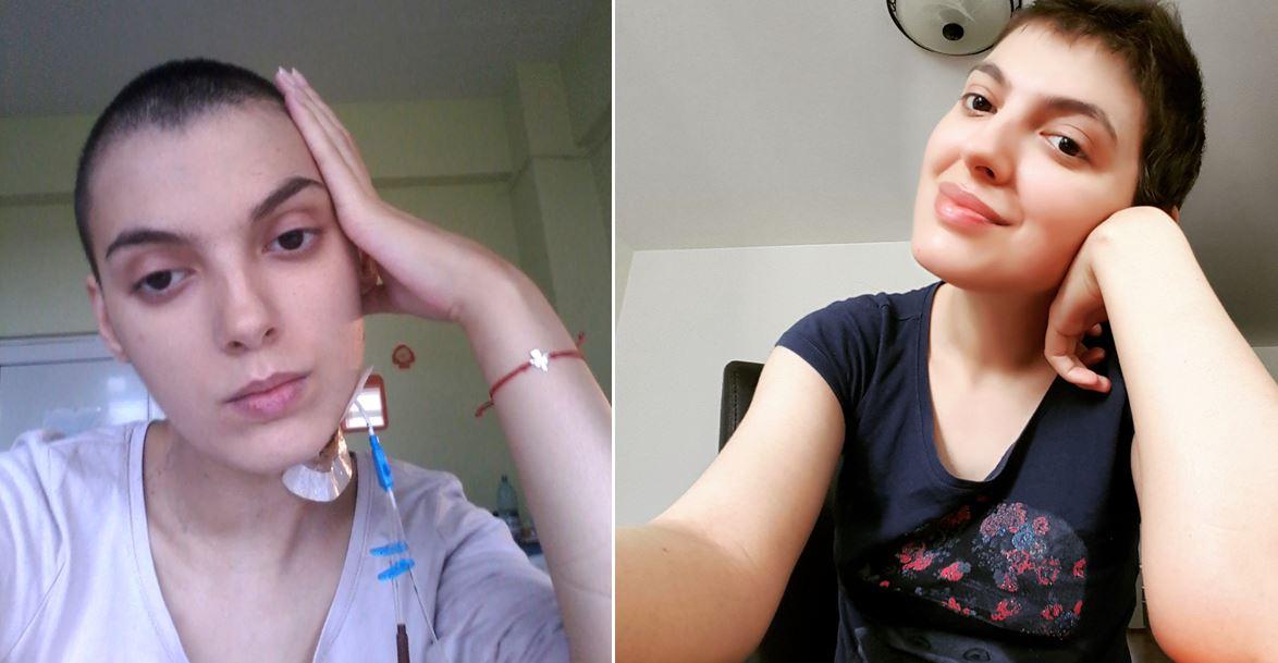 În timpul ședințelor de chimioterapie. Așa arată fețele leucemiei, cu suișuri și coborâșuri